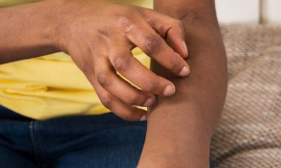 All about Eczema: What It's and How It's Typically Treated
